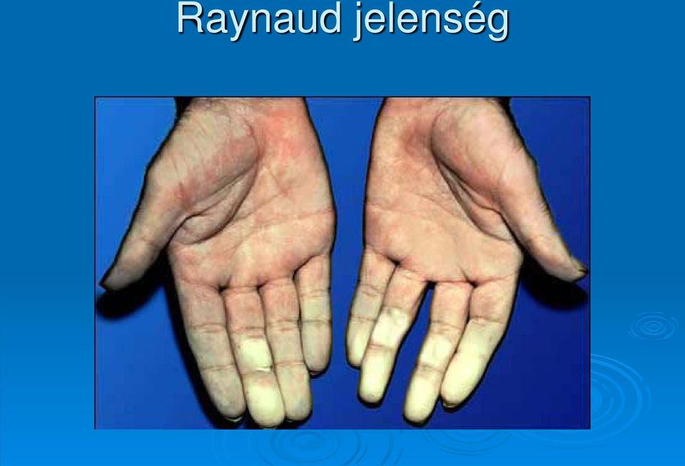 diffúz kötőszöveti betegségek