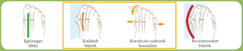 boka ligamentitis kezelése