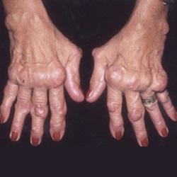hogyan lehet helyreállítani az ízületet rheumatoid arthritisben ízületkezelő gyógyszerek tabletták