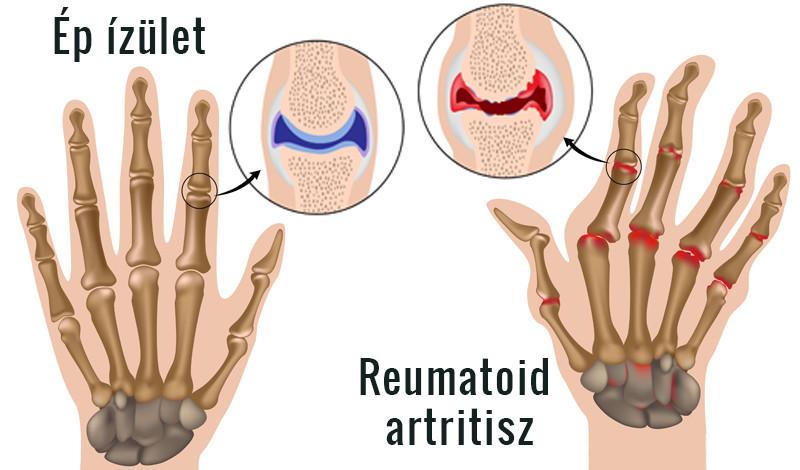 a kéz ujjai ízületeinek ízületi gyulladása