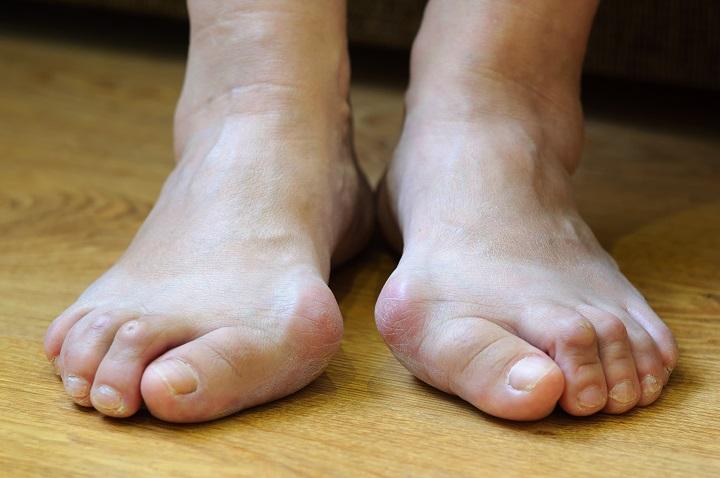 a nagy lábujj kenőcsének kezelése a lábak ízületeinek gyulladására szolgáló készítmények