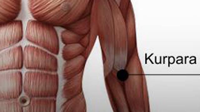 haemathrosis - Arthritis July