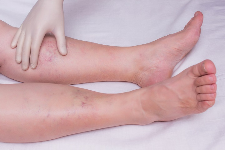 amikor fájdalom a lábak ízületeiben