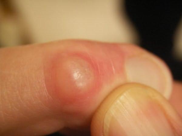 artritisz kúpok az ujjakon