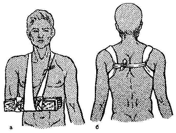az alkar ízületei fájnak rheumatoid arthritis esetén az ízületek kivételek