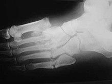 bokaízületek osteoarthritis kezelése