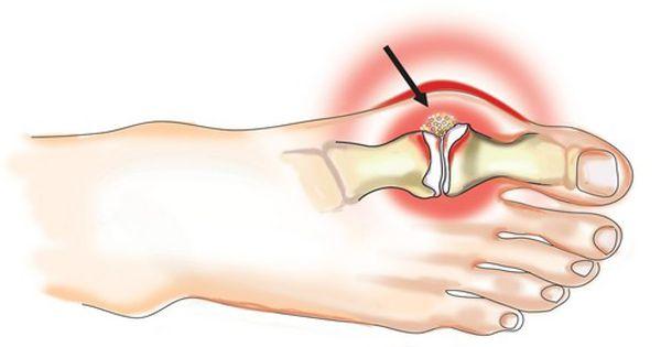 az artrózis tünetei a kereszti keresztirányú ízületben
