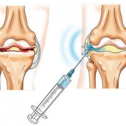 chondroprotektorok a térd kondroitin artrózisához