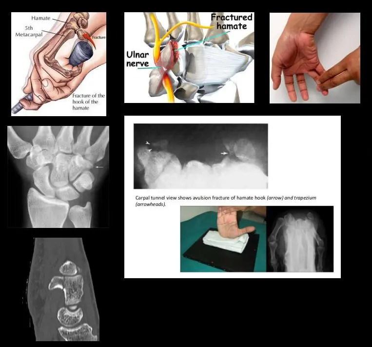 csukló ligamentum betegségek szúró fájdalom a térdben