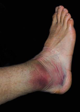 a lábízület osteoarthrosisának kezelése
