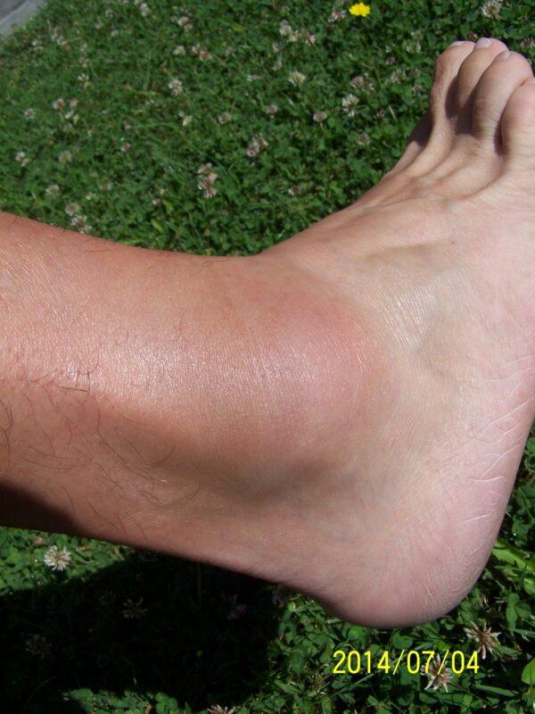 Fájdalom a láb belső részén - belső boka - tibialis posterior tendinopatia