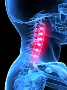 Tabletták a nyaki osteochondrosis szédüléséhez - Sérülések -