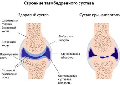 gyógyítja-e a medence az ízületeket injekciók térdízületek fájdalmához