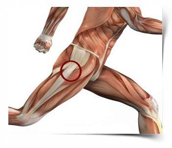 Béres mozgás – Élet a csípőprotézissel