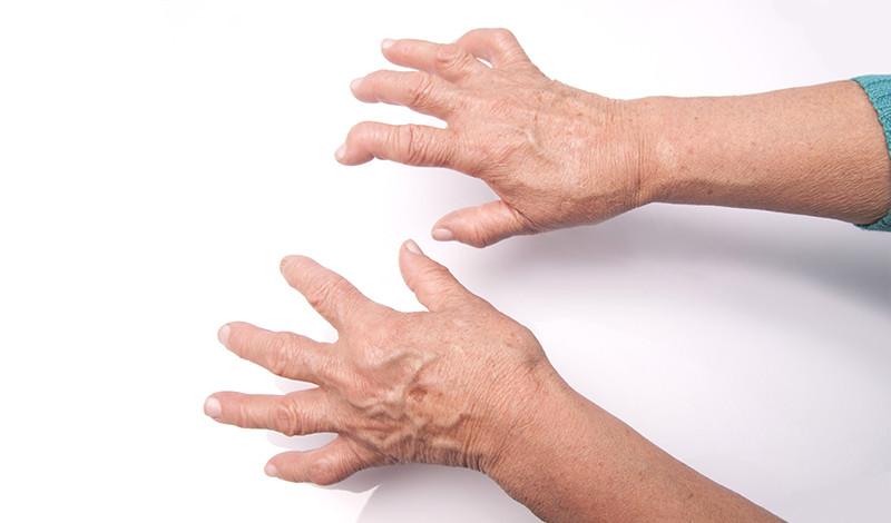 az ujjak ízületeinek rheumatoid arthritis