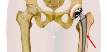 Csípőízületi fáj: okok, mit kell tenni? - Szemölcsök