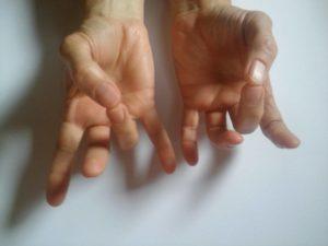 fájdalom a kéz három ízületében hogyan kell kezelni a csípőfájást