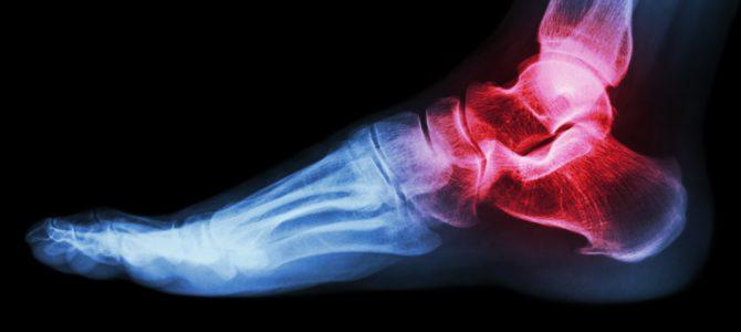 folyadék a bokaízület és a kezelés okaiban