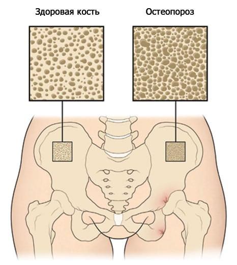gerincvelő artrózisa, ha nem kezelik a csípőízület artrózisának masszázskezelése