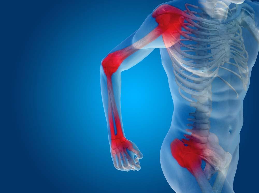 gyógyszer az ízületek gyulladásában súlyos fájdalom a vállízületben, mit kell tenni