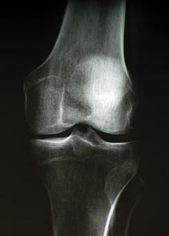 lehetséges az ízület artrózisos megterhelése