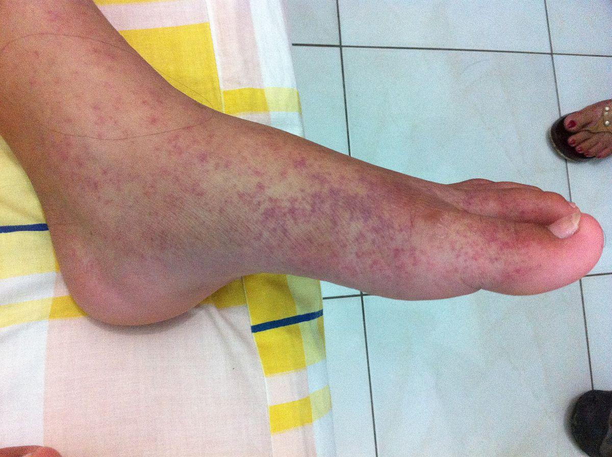 milyen betegségek a lábak ízületei ózonterápiás közös kezelés