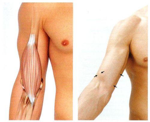 Betegségek, melyek könyökfájdalmat okozhatnak - fájdalomportásmarthabits.hu