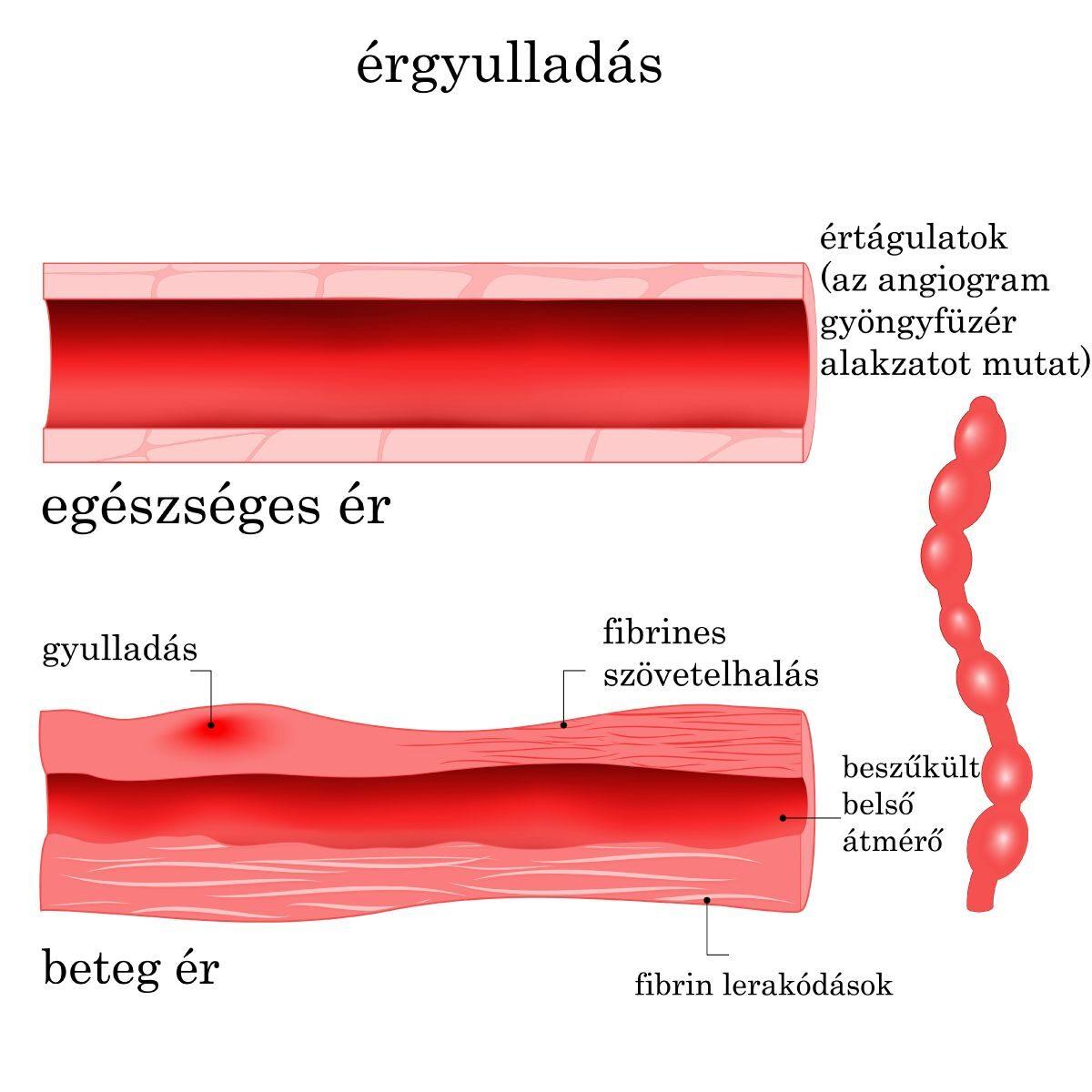 Az érgyulladás (vasculitis) tünetei és kezelése