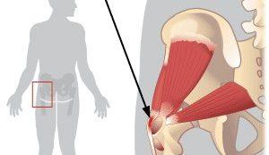 ízületi gyulladás csípőgyulladás